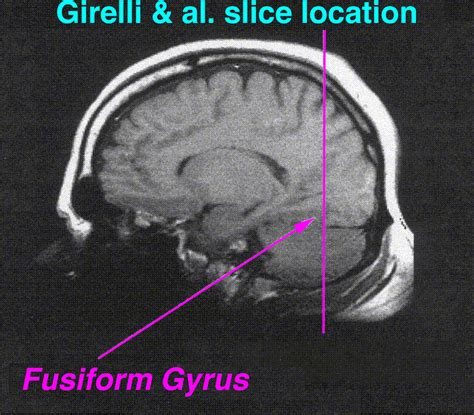 fusiform gyrus - The Full Wiki